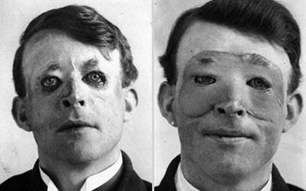 Walter Yeo, uno de los primeros en someterse a una cirugía plástica y transplante de piel, 1917