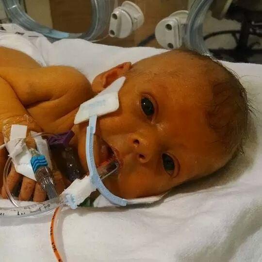 Bebe de Nathen Steffel en el hospital con tubos mediso
