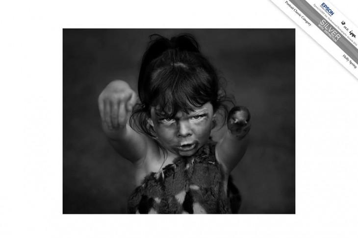 madre toma fotos de su hija a quien le falta una mano