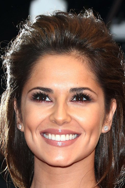 cheryl cole dientes derechitos