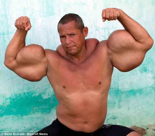 demasiados anabolicos en cuerpo de fisicunturits