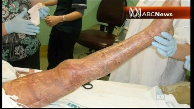 pierna de una persona picada por una medusa