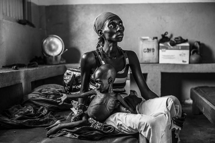 Mamá e hijo de dos años con desnutrición severa