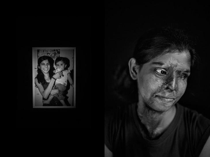 Fotografía del antes y después de una mujer atacada con ácido