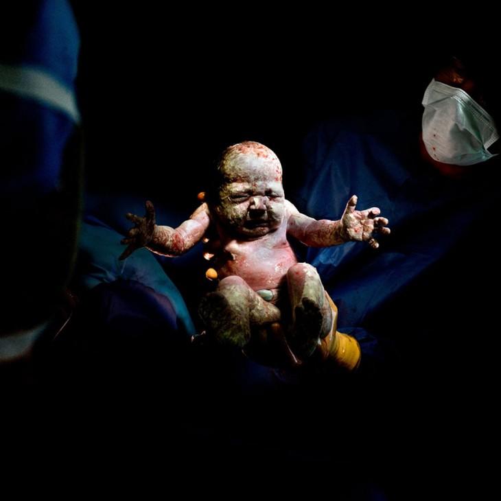 bebé recién nacido a través de cesárea