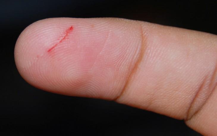 Parte de un dedo cortado con papel