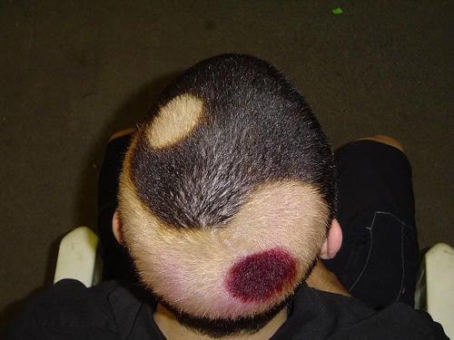 hombre con la cabeza rapada en forma de ying yang