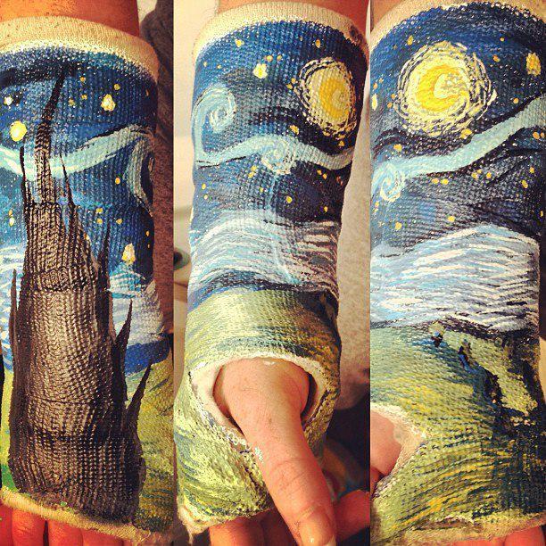 Yeso de un brazo con un paisaje pintado
