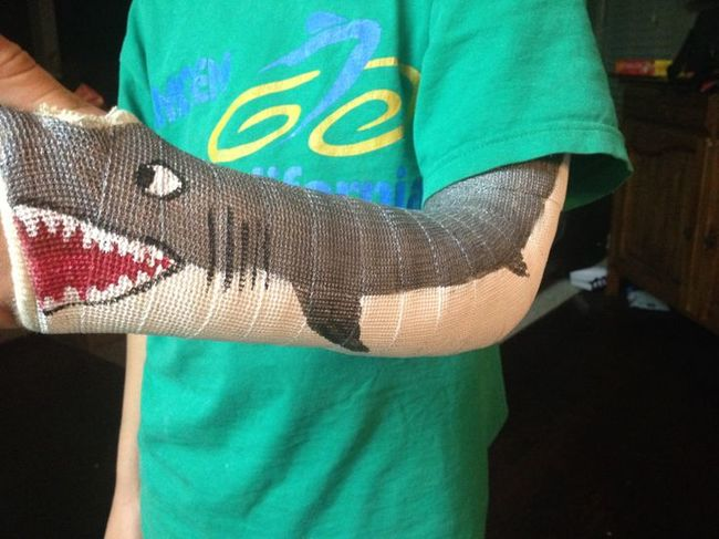 Yeso de brazo con un tiburón
