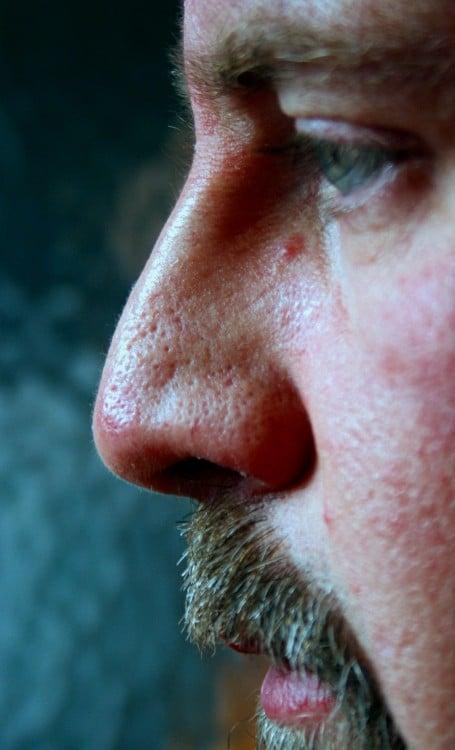 nariz horrible
