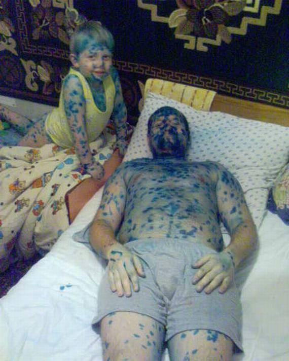 Padre e hijo pintados con manchas en toda la piel