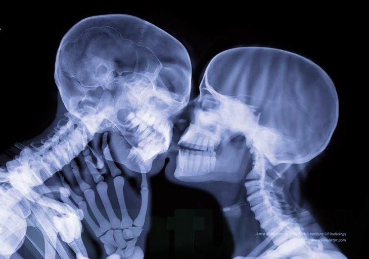 beso a través de los rayos x