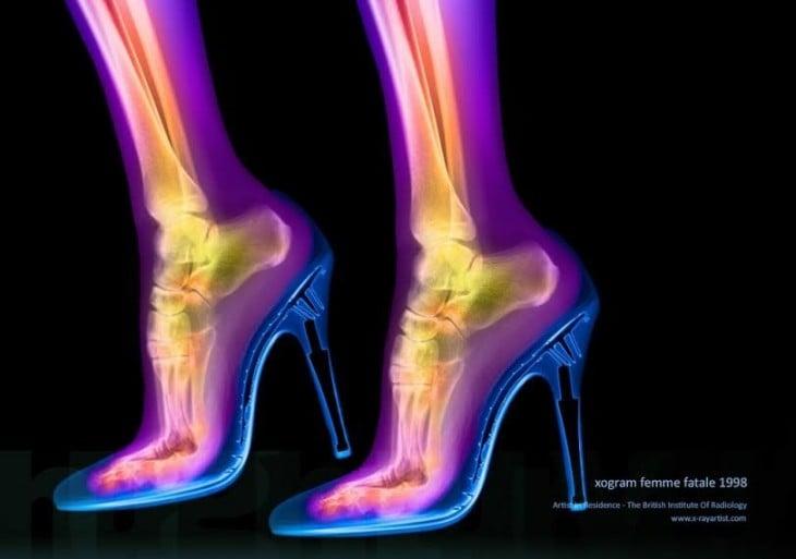 como se ven los huesos de los pies con tacones