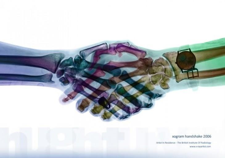 apretón de manos bajo rayos x
