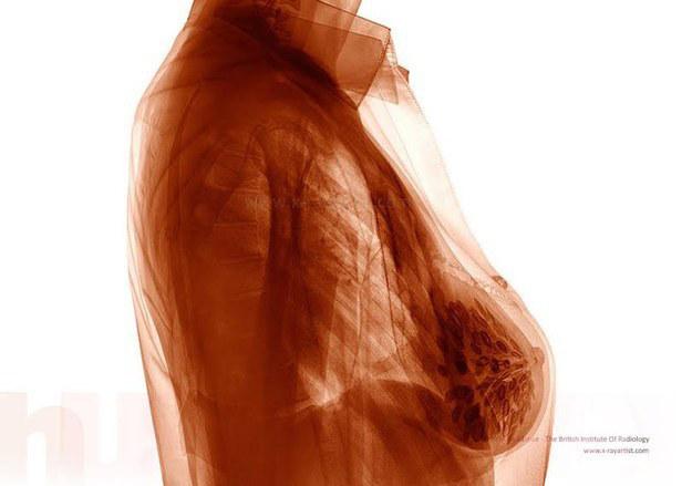 camisa puesta en rayox X