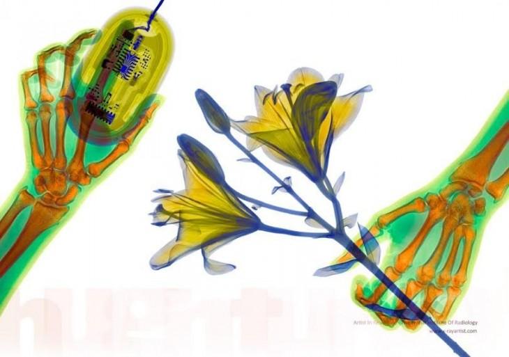 radiografía flor
