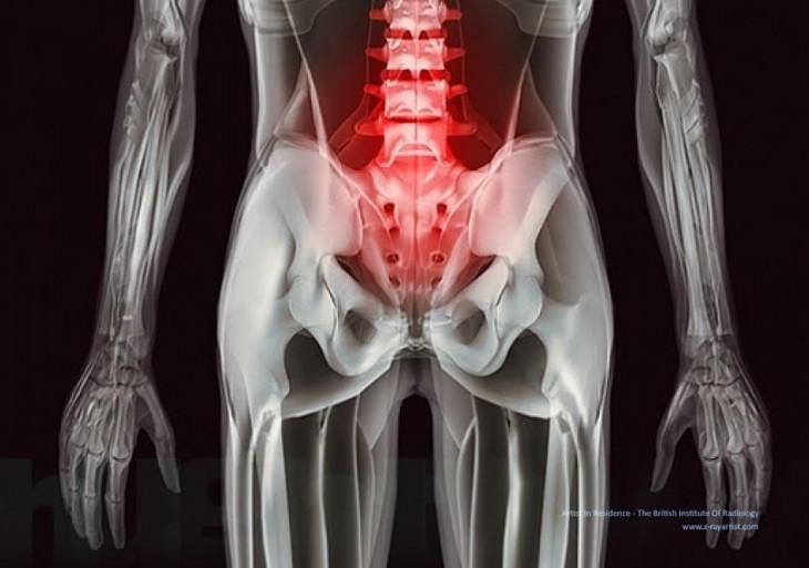 dolor lumbar a traves de rayos x