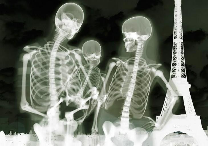 foto en rayos x de turistas en parís