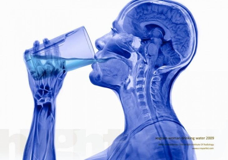 momento en el que tomamos agua mediante rayos x
