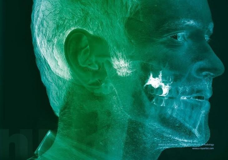 cancer de boca desde una radiografía