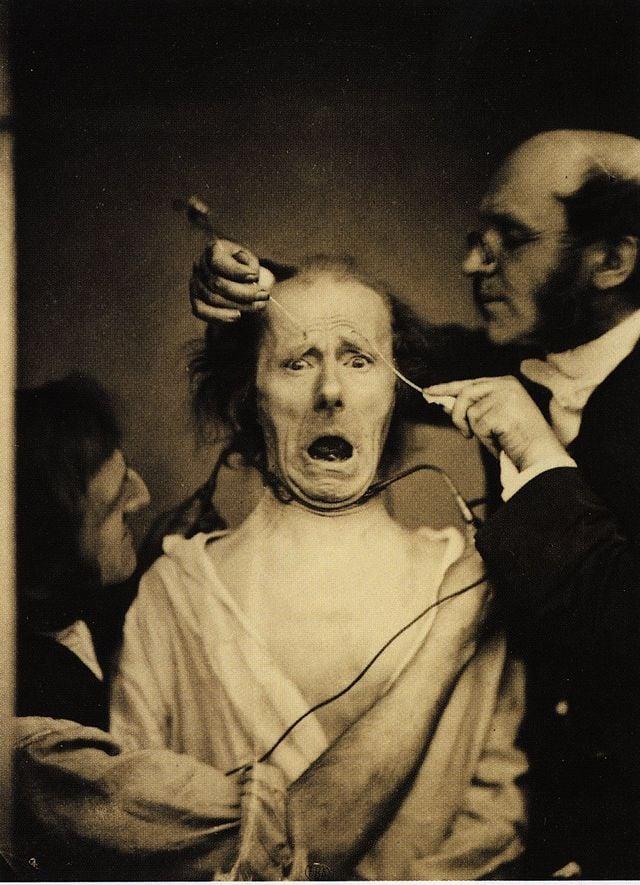 hombre electrocutado para ver el movimiento de os musculos faciales en 1862
