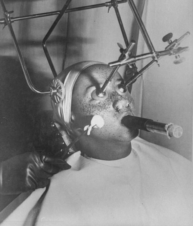 Tratamiento anti pecas de los años 30