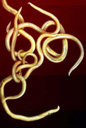 Solitaria Diphyllobothrium latum que se desarrolla en el intestino humano