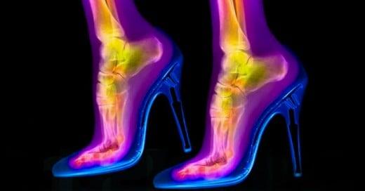 Artistícamente como los rayos X pueden ser divertidas