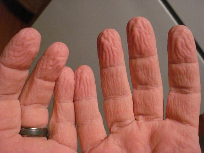 Dedos de las manos arrugados por el agua