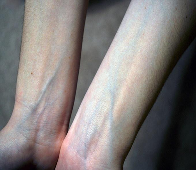 Brazos que muestran el azul de las venas
