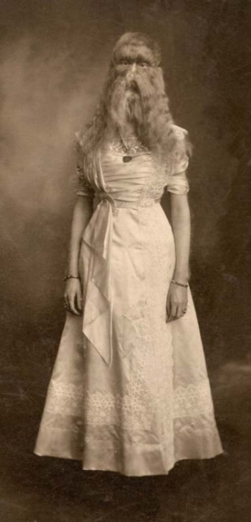 Alice Doherty the minnesota wooly baby