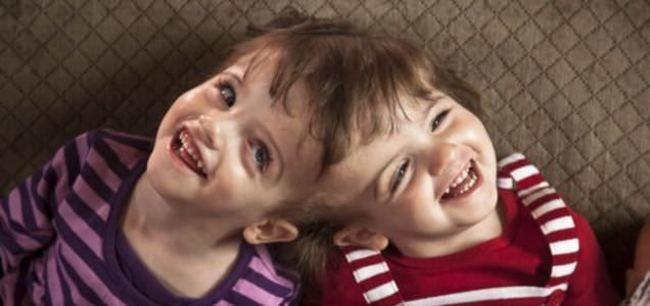 gemelas krista y tatiana unidas por el craneo comparten pensamientos y sentimientos