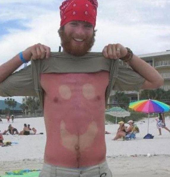 hombre se quema con carita feliz en la barriga
