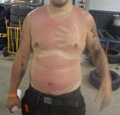 hombre se le marcan las llantitas y la mano con quemadura de sol