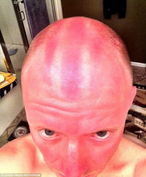 hombre se quema la cabeza por no ponerse bloqueador solar