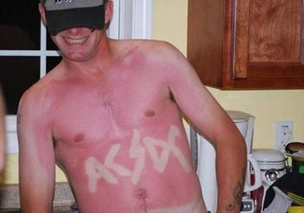 fanatico de acdc se tatua con el sol su logo