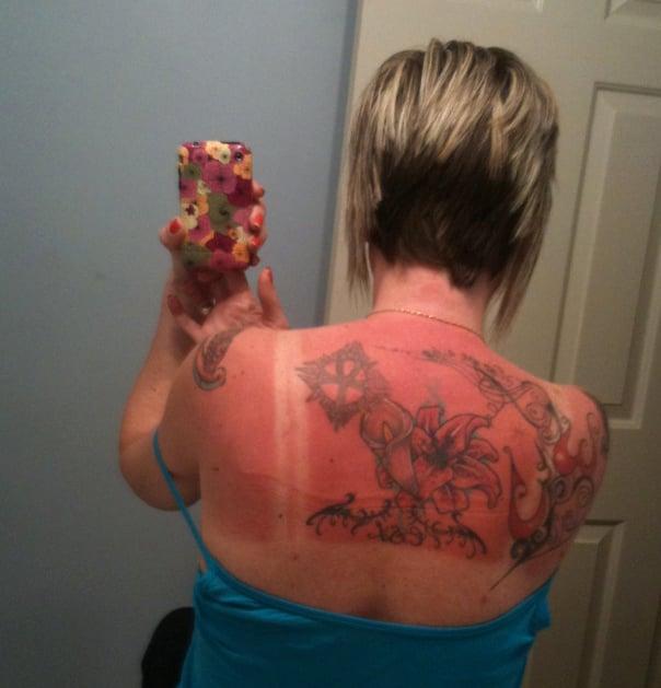 espalda con tatuaje de flores quemada por el sol
