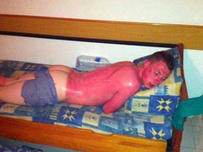 hombre quemado por el sol tirado en el sofa del hotel
