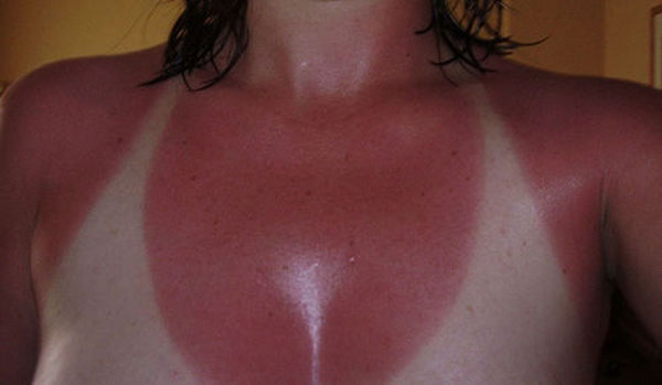 mujer se quema el area del top con el sol