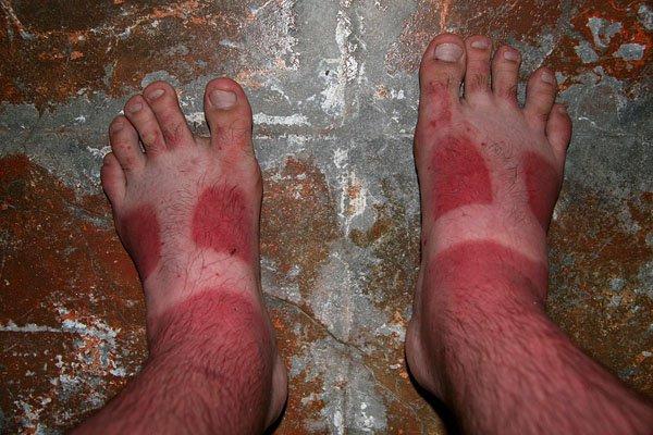 hombre con las sandalias marcadas por quemaduras de sol