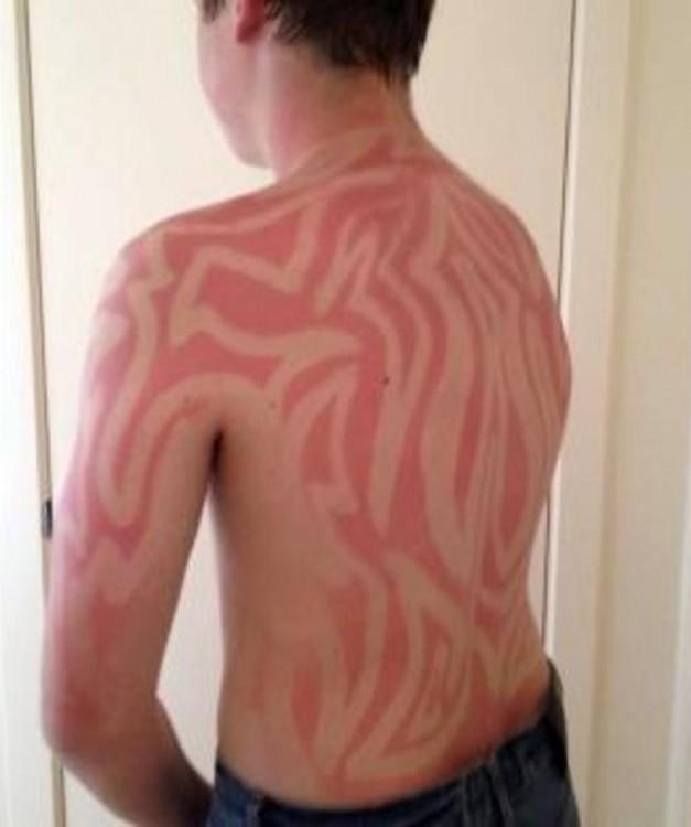 hombre se produce tatuaje solar