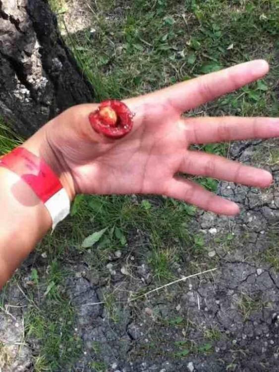 cereza en un dedo