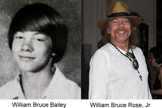 fotografía del antes y después del famosos Axl Rose
