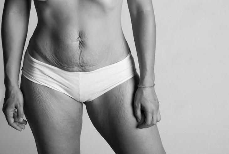 cuerpo de una mujer con un bikini blanco mostrando sus estrías