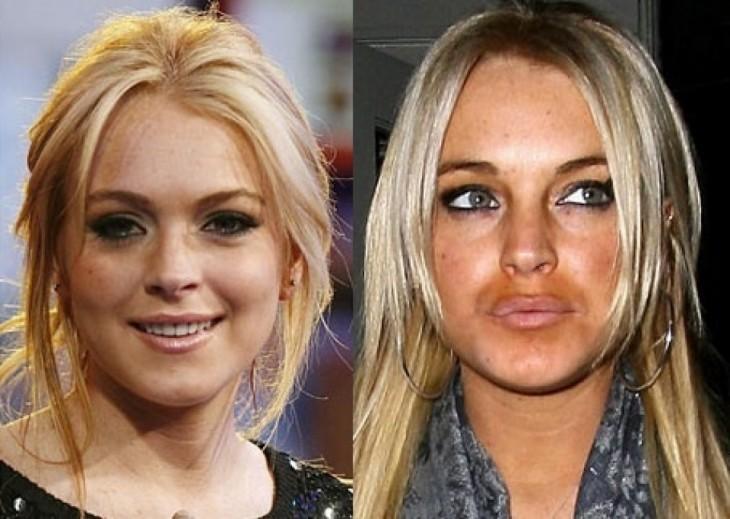 lindsay lohan con aumento de labios