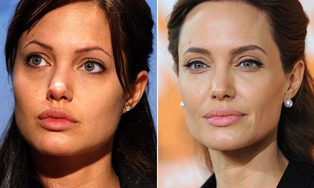 angelina jolie antes y despues de las cirugias