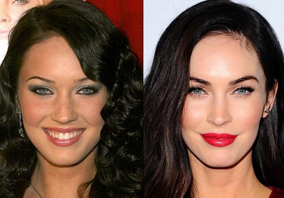 Resultado de imagen para Antes y despues  cirugias