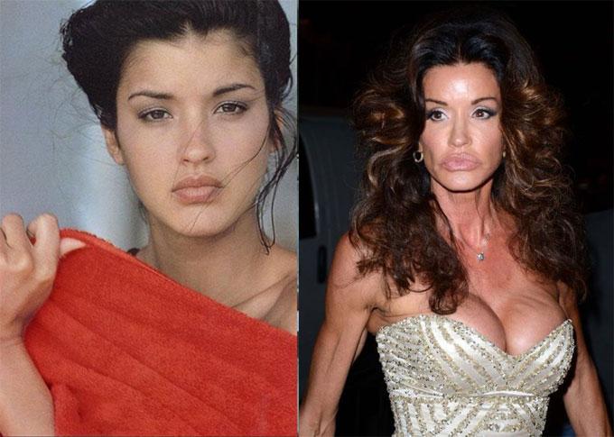 janice dickinson antes y despues de las cirugias