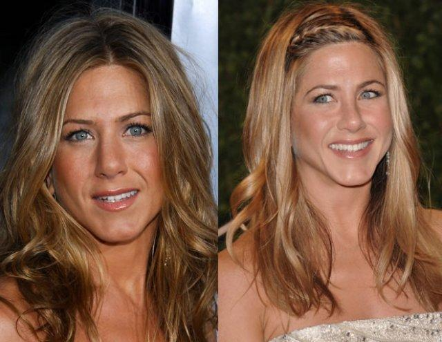 jenifer aniston antes y despues de la cirugia