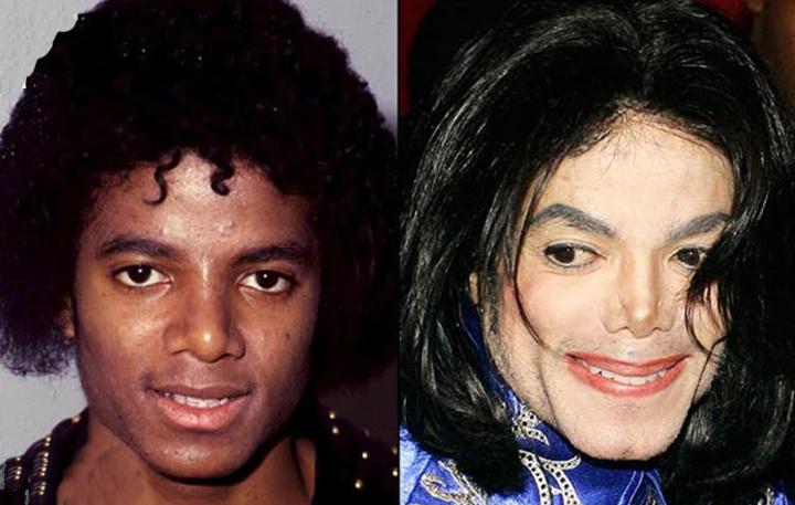 michael jackson antes y despues de sus transformaciones